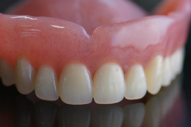 Dentures  St. Charles, MO
